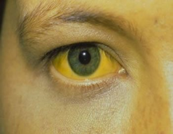 yellow fever, vaccination