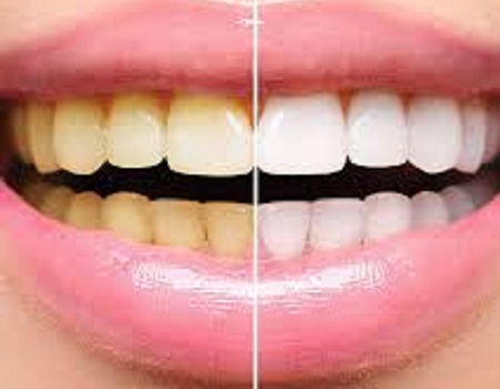 Three Natural Steps To Whiten Your Teeth