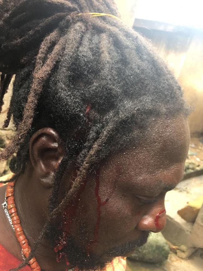 Thugs axe one protester