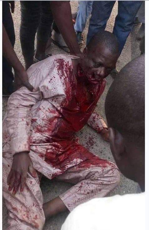 Gunmen injure Auditor General, Bauchi Auditor General